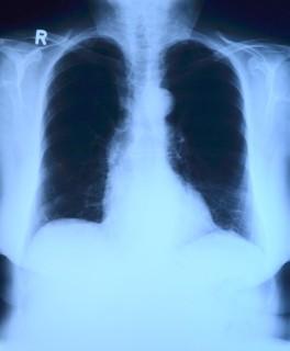 röntgenbild 1437080009 e1437080022460