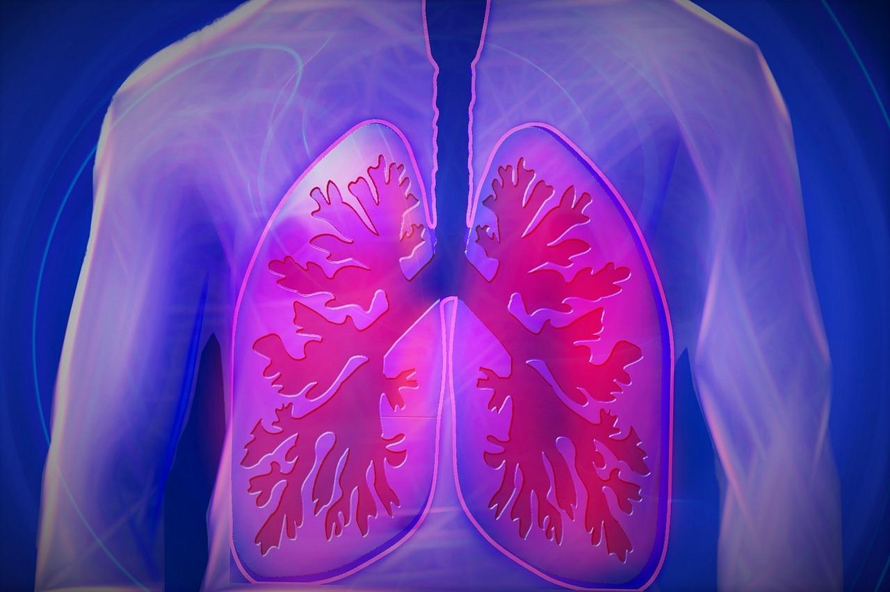 Lunge 1533549308